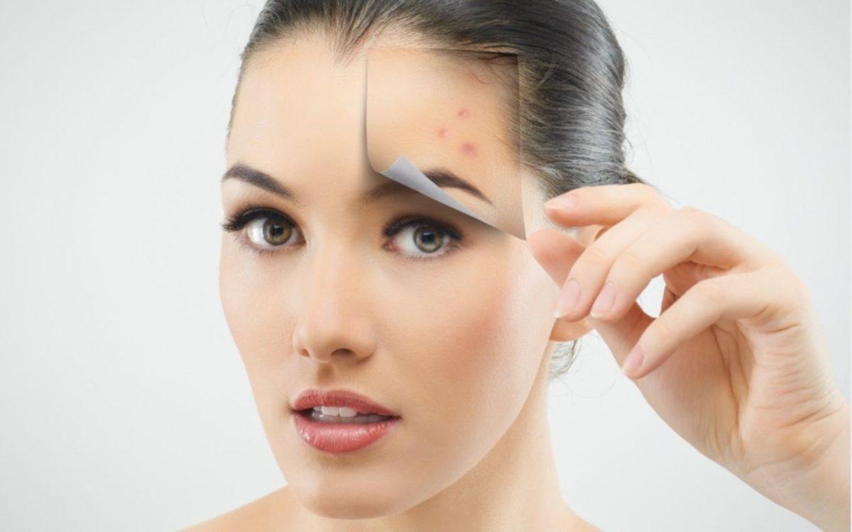 Afla ce este acneea si cum o putem trata si preveni